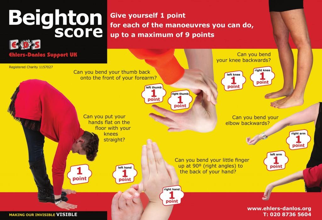 beighton score ehlers danlos syndrome